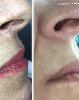 nose spider vein removal