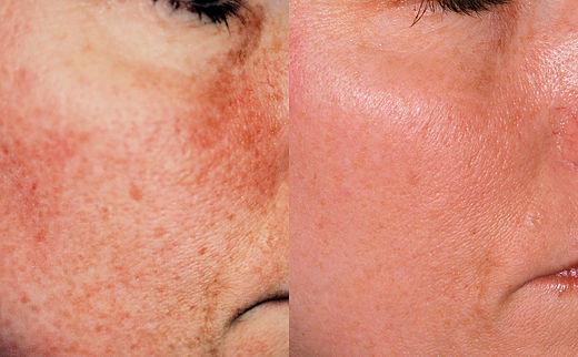 skin rejuvenation example