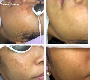 skin rejuvenation example